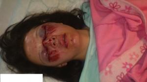 air bag injuries pic