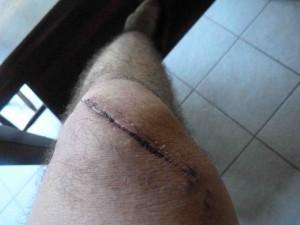 wound 4